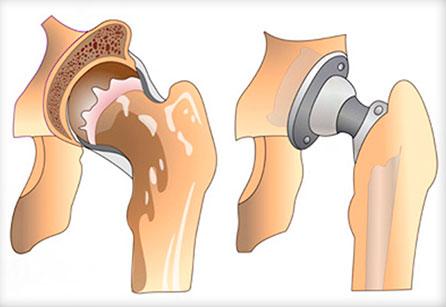 Эндопротезирование тазобедренного сустава в Днепре: замена тазобедренного сустава в клинике Гарвис