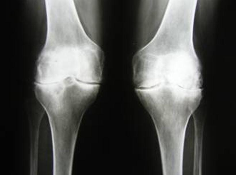Эндопротезирование коленного сустава киев кости суставы болезнь межхрящевая жидкость