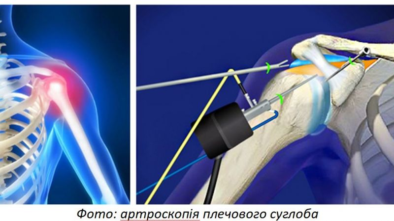Arthroscopy of joints