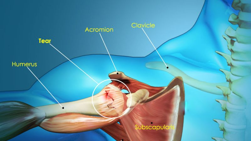 The Analysis of Surgical Treatment Results in Rotator Cuff Tears