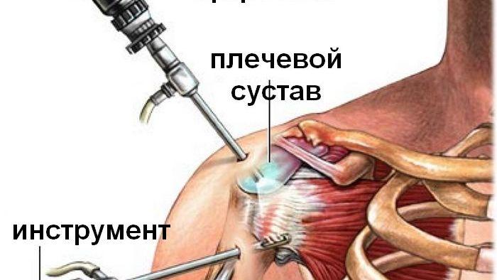 Артроскопия плечевого сустава травматология протеины аминокислоты лечение суставов ног