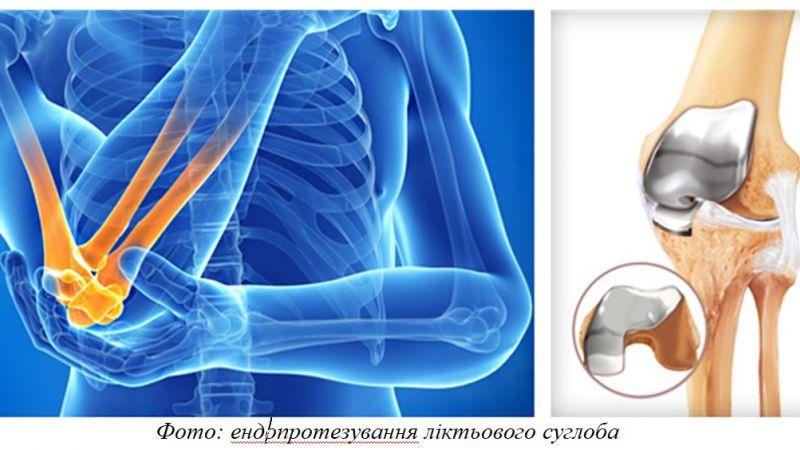 Эндопротезирование локтевого сустава упражнения для восстановления плечевого сустава после вывиха