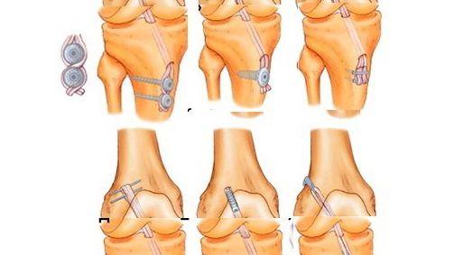 Разрыв передней связки лечения коленного сустава)