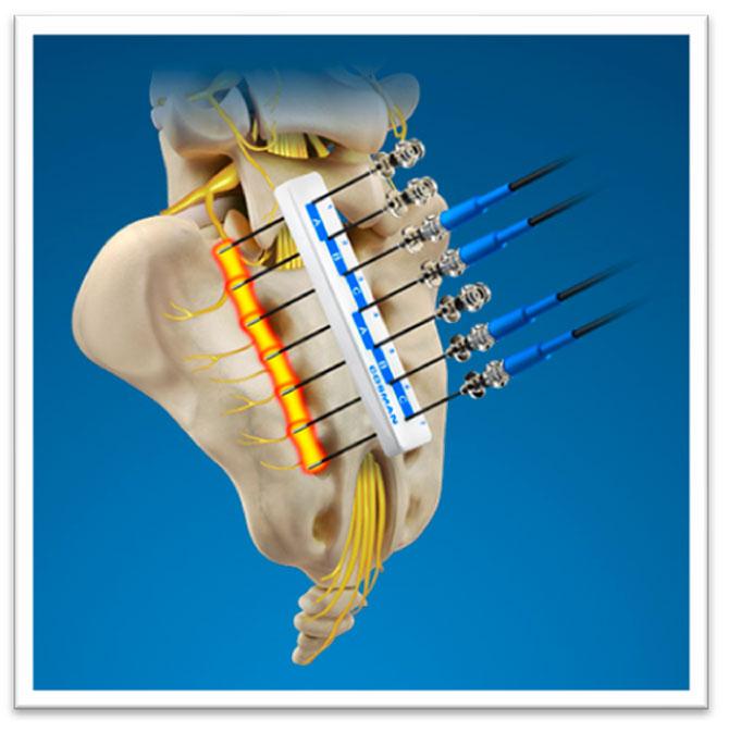 Применение Радиочастотной Абляции при болях в спине