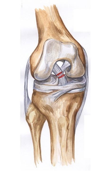 Крестообразная связка коленного сустава картинки